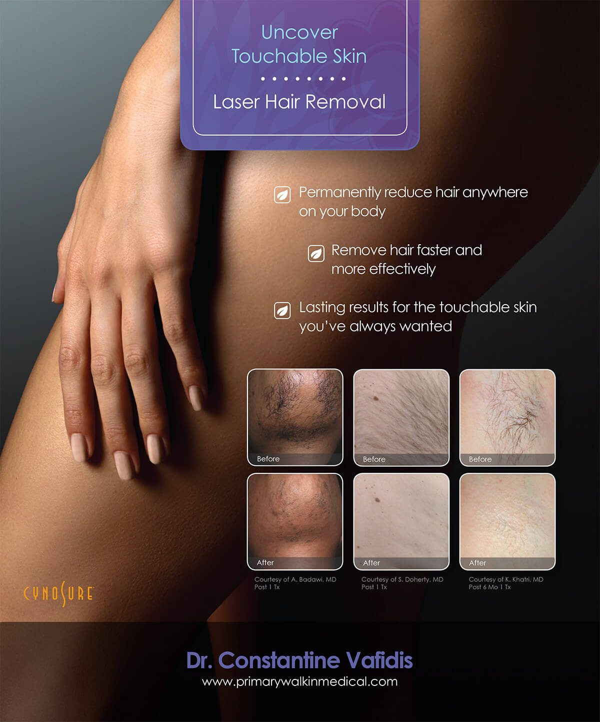 Hair Removal in Providene