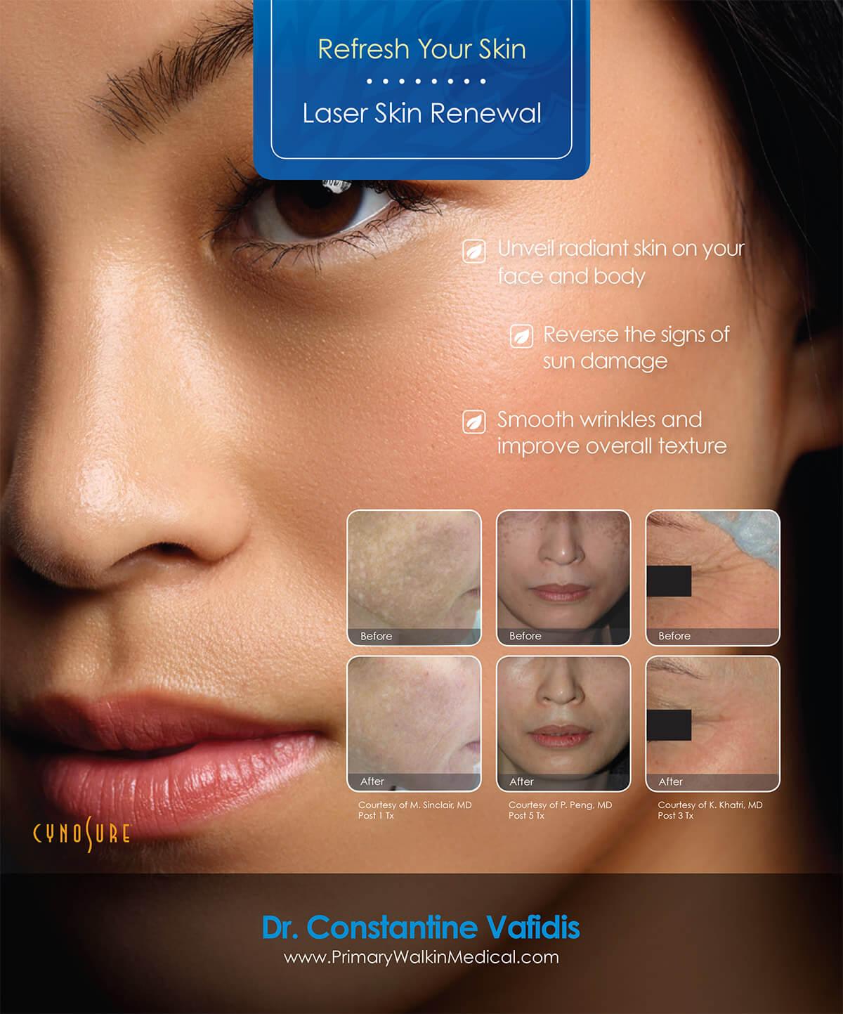 Laser Skin Firming