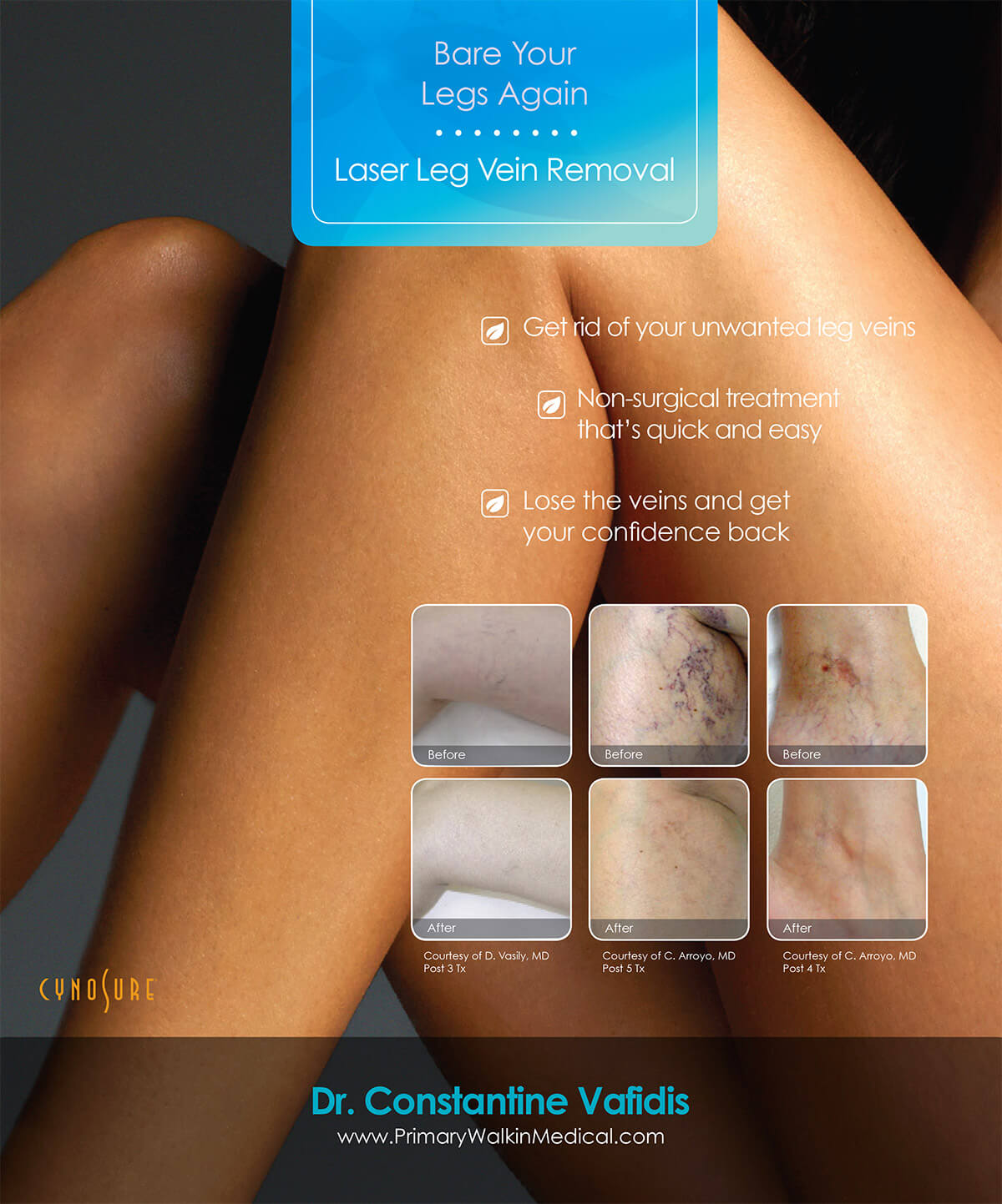 Pigmentation and Vein Removal